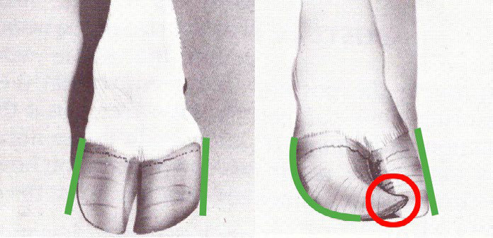 DairySmid Hoof Trimming The tip of the toe indicated in the red circle is not a good indicator for corkscrews but rather the angle of the abaxial wall as indicated in green